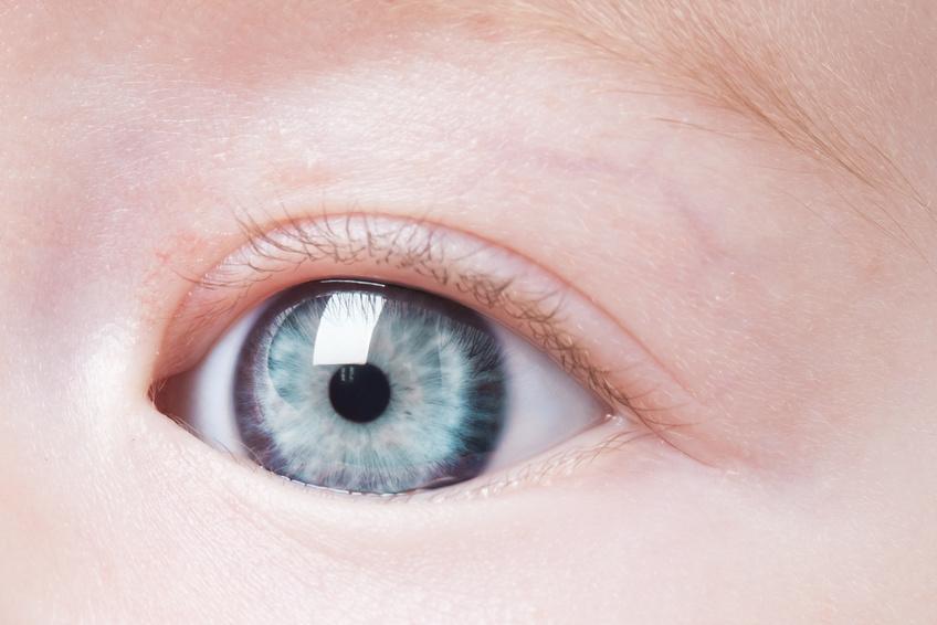 Quand un canal lacrymal est bouché, les larmes ne s écoulent pas vers les  fosses nasales et stagnent dans l œil. D où un larmoiement permanent, ... 71d886f3018