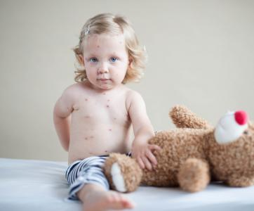 petite fille qui a la varicelle